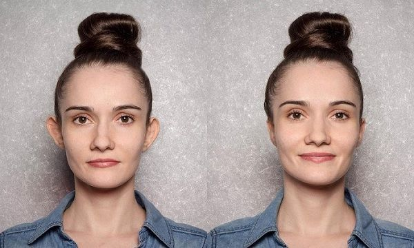 اتوپلاستی چیست؟ مزایای عمل جراحی زیبایی گوش بزرگسالان و کودکان
