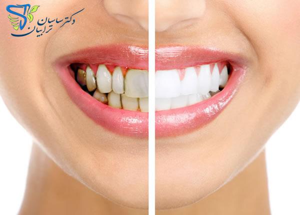 اصلاح طرح لبخند با متخصص دندانپزشکی زیبایی (H1)