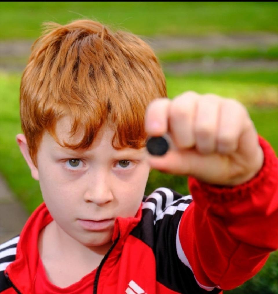 سرنوشت عجیب پسربچه پس از قورت دادن یک باتری!