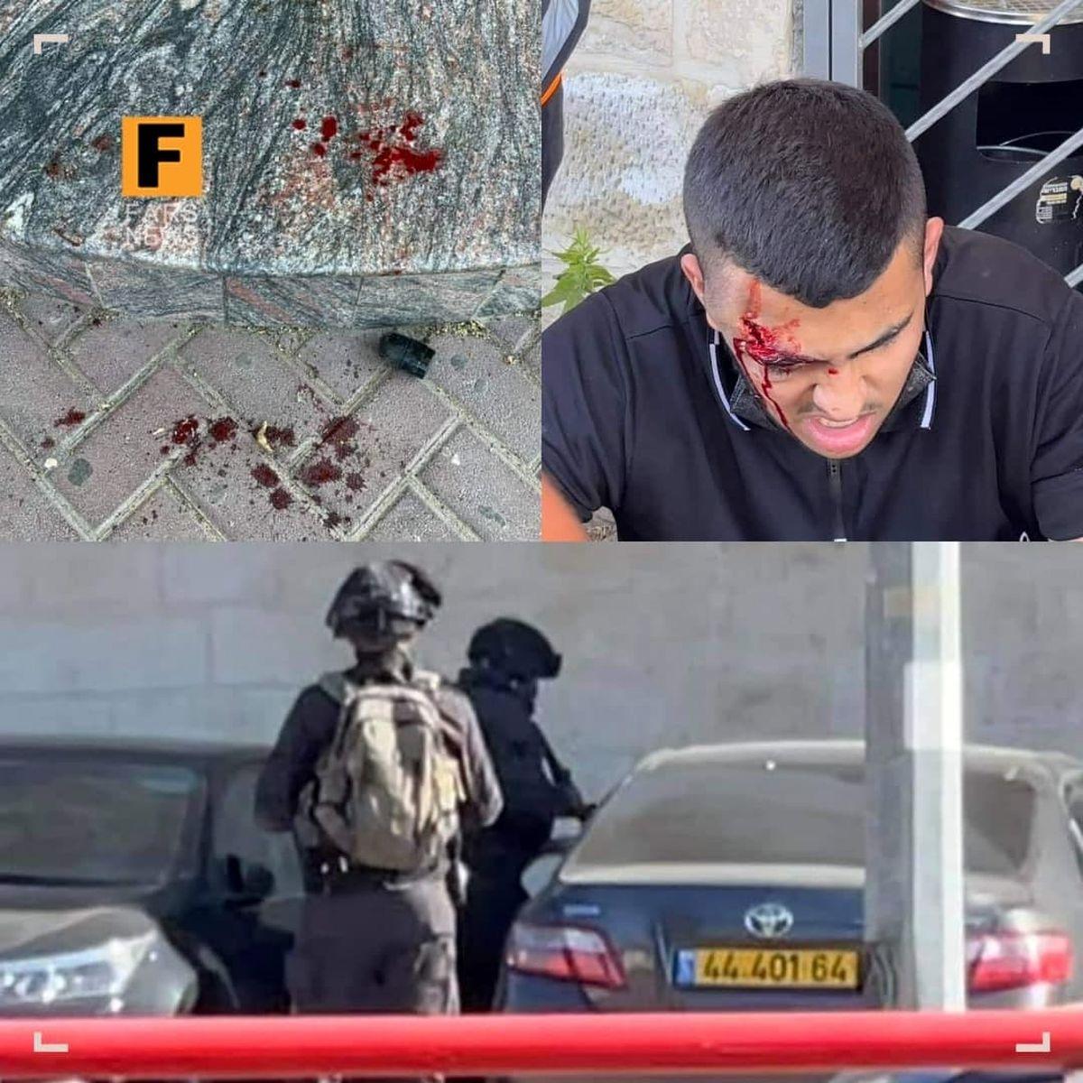 شلیک به جوان فلسطینی از فاصله صفر! +عکس