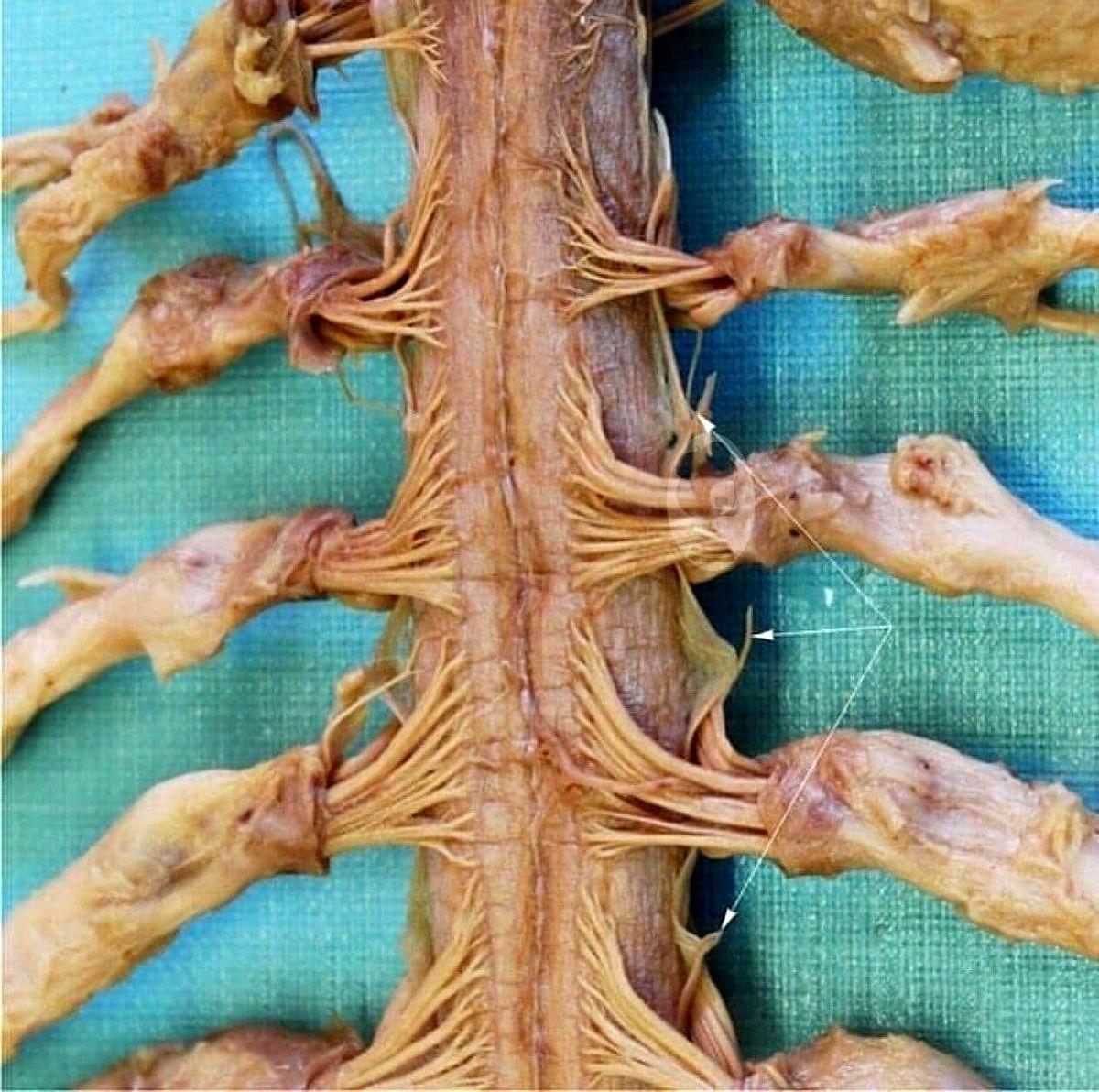 تصویر زوم شده از نخاع بدن انسان را ببینید