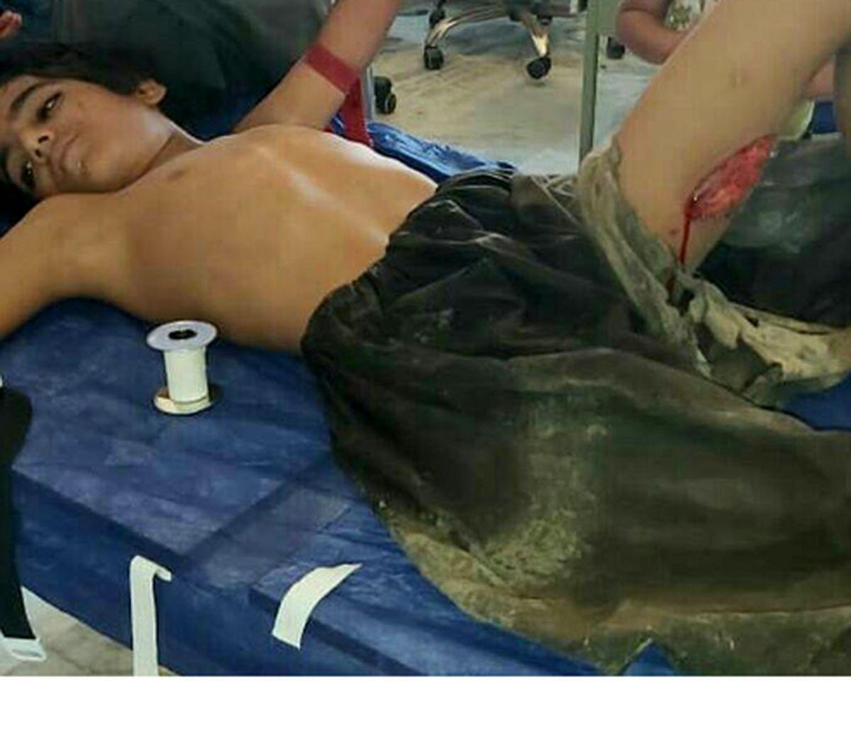 حمله گاندو به یک نوجوان در پیشین +عکس