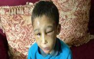 شکنجههای دردآور پسربچه ۸ ساله توسط والدین معتادش +عکس