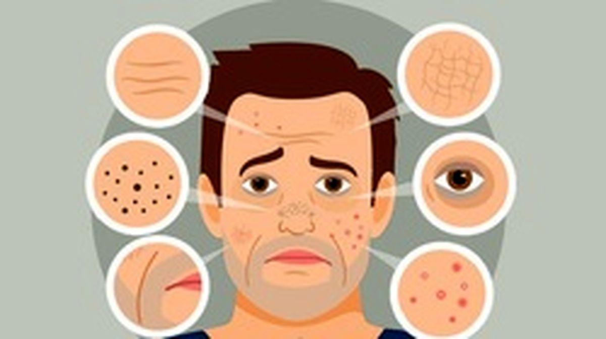 تاثیرات خطرناک آلودگی هوا بر پوست