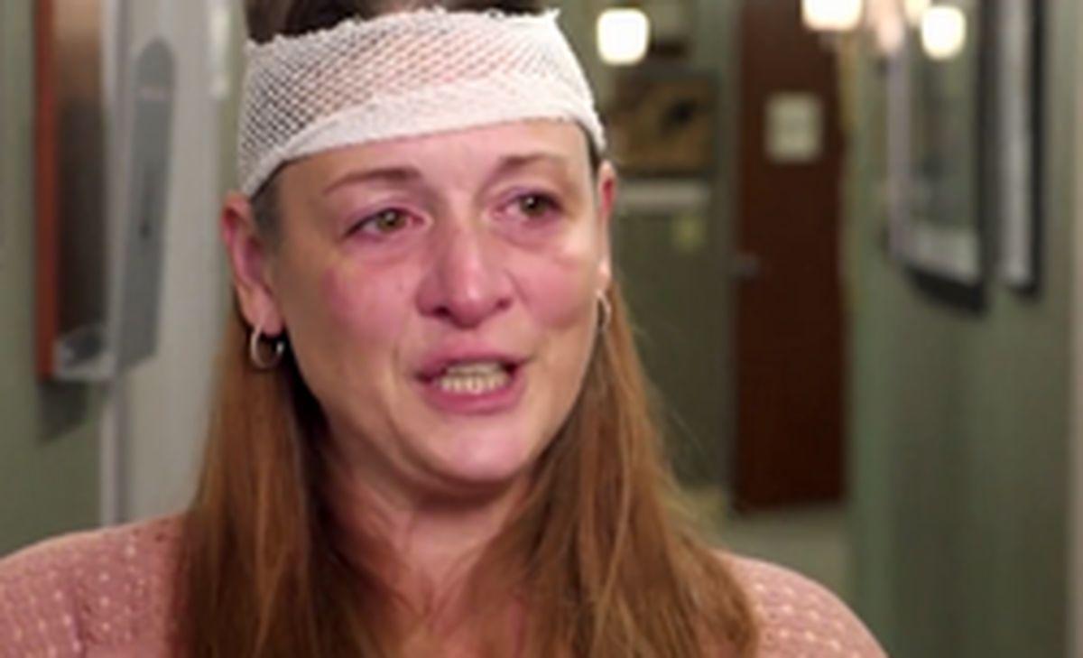 تازهعروس شاخدار از خجالت خانواده زیر تیغ جراحی رفت! +عکس