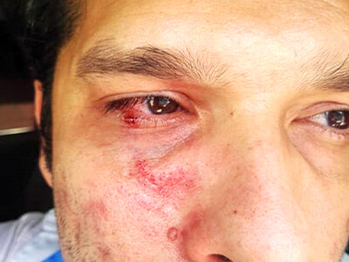 ماجرای ضرب و شتم کارشناس بهداشت! +عکس