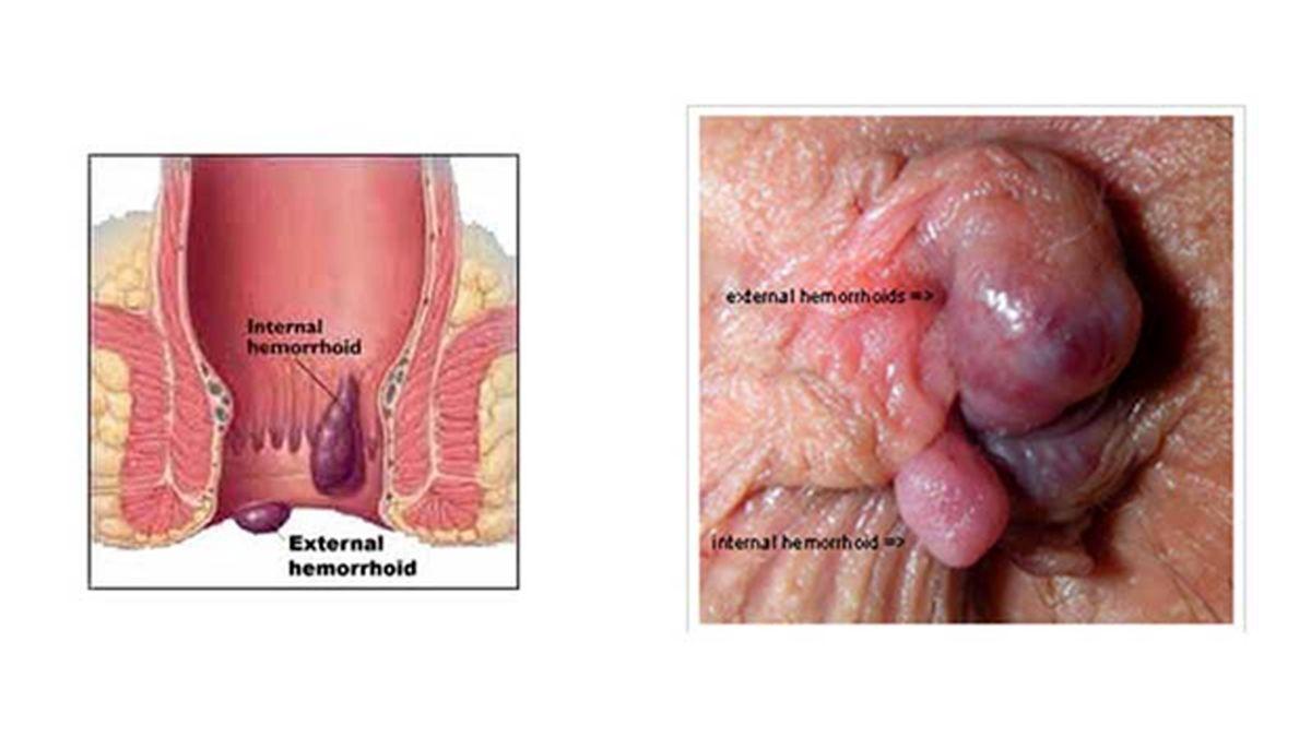 روش های درمان هموروئید خارجی را بهتر بشناسید   بواسیر خارجی