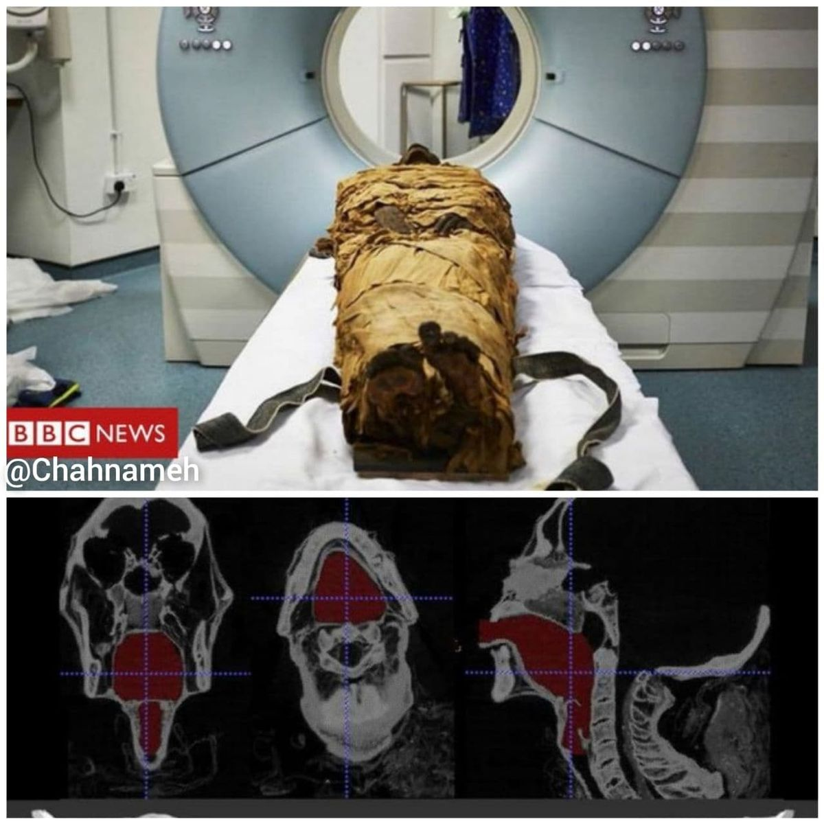 بازسازی صدای یک مومیایی ۳٠٠٠ساله مصری +عکس