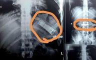 نجات بیمار مصری از خطر انفجار معده اش! + عکس