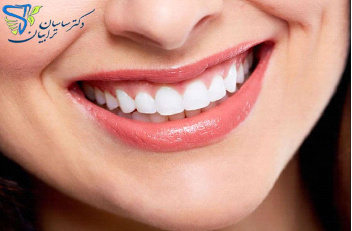 اصلاح طرح لبخند با متخصص دندانپزشکی زیبایی