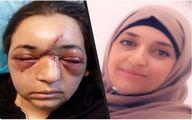 شکستن جمجمه زن فلسطینی در پی حمله وحشیانه سرباز صهیونیست +عکس