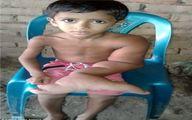 دست عجیب پسر ۵ ساله بنگلادشی! +عکس